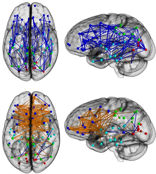 brain connectivity male female